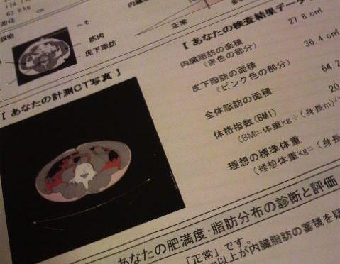 CTによる内臓脂肪検査